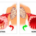 лечение астмы екатеринбург